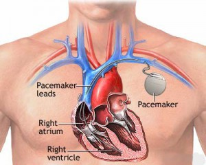 paceMakerPic